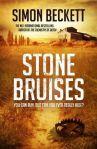 stone-bruises